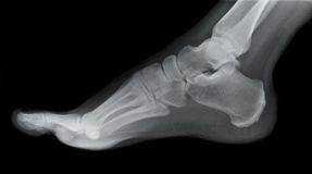 Right Foot Side X-ray Royalty Free Stock Images