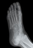 Right Foot Side X-ray. A human foot right side Royalty Free Stock Photography