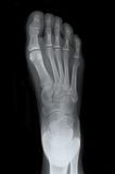 Right Foot Top Xray. Right foot showing broken big toe for medical purposes Royalty Free Stock Photos