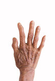 Right hand of a leprosy   Royalty Free Stock Photography
