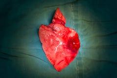 Right middle lobe adenocarcinoma specimen Royalty Free Stock Photos