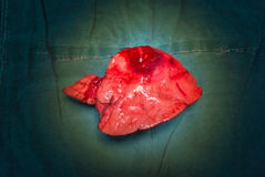 Right middle lobe adenocarcinoma specimen. The right middle lobe adenocarcinoma s/p lobectomy stock photos