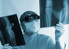 Rijpe arts die het beeld van de Röntgenstraal onderzoekt royalty-vrije stock foto