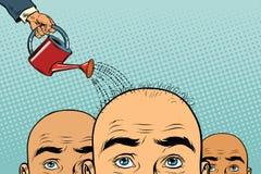 Rimedio a crescita dei capelli uomo calvo versato da un annaffiatoio royalty illustrazione gratis