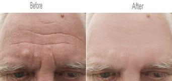 Rimpel, huid, voorhoofd, oud oog, wenkbrauw stock afbeeldingen