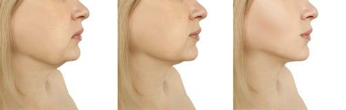 Ringiovanimento del viso del doppio mento della donna che stringe prima l'incurvatura di perdita dopo le procedure ovali del coll fotografia stock libera da diritti