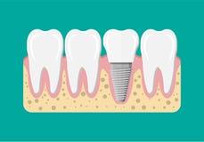 Ripristino del dente Innesto dentale Fotografia Stock Libera da Diritti