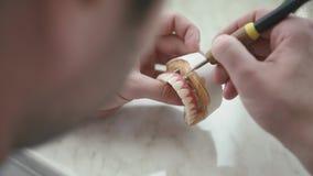Ripristino prostetico dentario Il Denturist sta formando le gomme mentre scolpiva la protesi dentaria archivi video