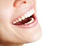 Riso da mulher feliz com dentes saudáveis Fotos de Stock