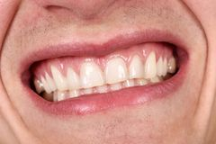 Riso masculino da boca Fotografia de Stock Royalty Free