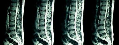 Risonanza magnetica dei tratti lombari della colonna vertebrale di un paziente con dolore alla schiena cronico fotografia stock libera da diritti
