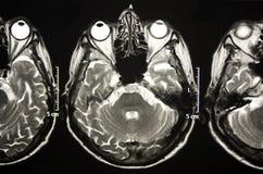 A risonanza magnetica del cervello Fotografia Stock Libera da Diritti