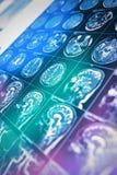 Risonanza magnetica della testa del paziente nei raggi di luce colorata, fondo per lavoro scientifico e pratico, notizie, pagine  fotografia stock