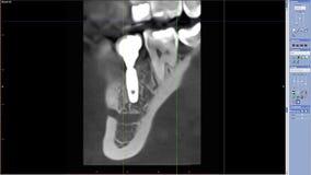Risonanza magnetica di vita reale di masticazione dell'impianto laterale del dente per scienza medica di qualità di ricerca del d stock footage