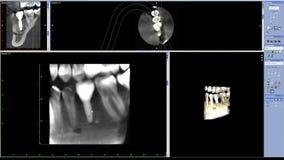 Risonanza magnetica di vita reale di masticazione dell'impianto laterale del dente per scienza medica di qualità di ricerca del d archivi video