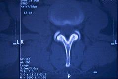 Risonanza magnetica medica del bacino della spina dorsale delle anche Fotografia Stock Libera da Diritti