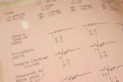 Risultati della prova cardiologici Fotografie Stock Libere da Diritti