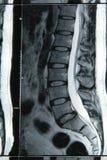 Risultato 1 di MRI Fotografie Stock Libere da Diritti