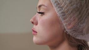 Risultato di aumento del labbro stock footage