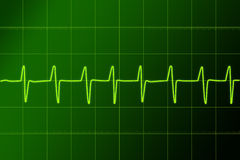 ritm сердца Стоковое Изображение RF