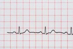 Ritmo del corazón del sino en el papel de registro del electrocardiograma que muestra el corazón normal foto de archivo libre de regalías