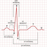 Ritmo normal del sino del corazón humano, electrocardiograma Fotografía de archivo