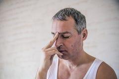 Ritratto del primo piano, giovane uomo adulto, depressi tristi, sollecitato, Fotografia Stock Libera da Diritti