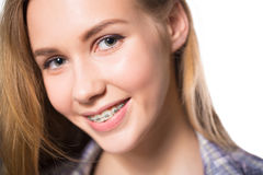 Ritratto della ragazza teenager che mostra i ganci dentari Fotografia Stock