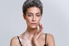Ritratto di bellezza della donna di vitiligine Fotografia Stock Libera da Diritti