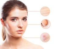 Ritratto di giovane bella donna con il problema e la pelle pulita immagini stock