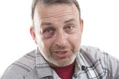 Ritratto emozionale maschio caucasico di mezza età con una contusione reale immagini stock libere da diritti