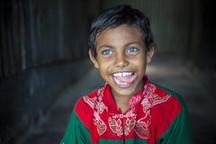 Rizvi 8 Jahre alt, ein Sperrungskind mit seltenen blauen Augen in Bangladesch Lizenzfreies Stockbild
