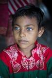 Rizvi 8 Jahre alt, ein Sperrungskind mit seltenen blauen Augen in Bangladesch Stockfotos