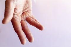 Ręka mężczyzna z Dupuytren contracture Obraz Stock
