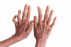 Ręki trąd odizolowywający na białym tle Zdjęcia Royalty Free