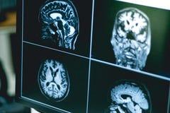 RMI brian del paziente di demenza Immagine Stock