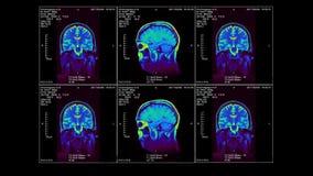 RMI del cervello in tre dimensioni, video ciclo, alfa-Manica illustrazione vettoriale
