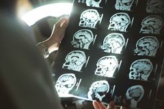 RMI e demenza del cervello Fotografia Stock Libera da Diritti