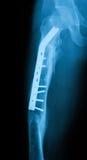 Röntga bilden av lårbenet, AP-sikten som visar lårbenbrott med commpr Arkivfoton