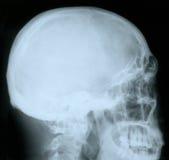 Röntgenstraal van een menselijke schedel Stock Foto's