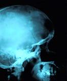 Röntgenstraal van een schedel - zijaanzicht Royalty-vrije Stock Foto