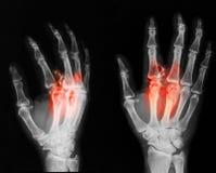 Röntgenstraalbeeld van gebroken hand, AP en schuine mening Stock Foto's