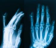 Röntgenstraalbeeld van hand, AP en schuine mening Royalty-vrije Stock Afbeeldingen
