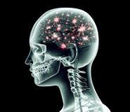 Röntgenstraalbeeld van menselijk hoofd met hersenen en elektrische impulsen Royalty-vrije Stock Afbeeldingen