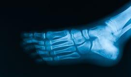 Röntgenstraalbeeld van voet schuine mening Stock Foto