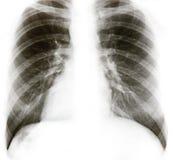 Röntgenstrahl Lizenzfreie Stockbilder