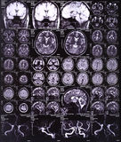 Röntgenstrahlbild des Gehirns Stockbilder