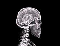 röntgenstråle för framsidasidosikt Arkivfoto