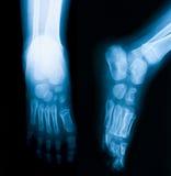 Röntgenstrålebild av foten, AP och den sneda sikten Royaltyfri Bild