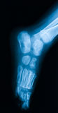 Röntgenstrålebild av foten, sned sikt Arkivfoto